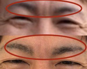 眉間シワの改善