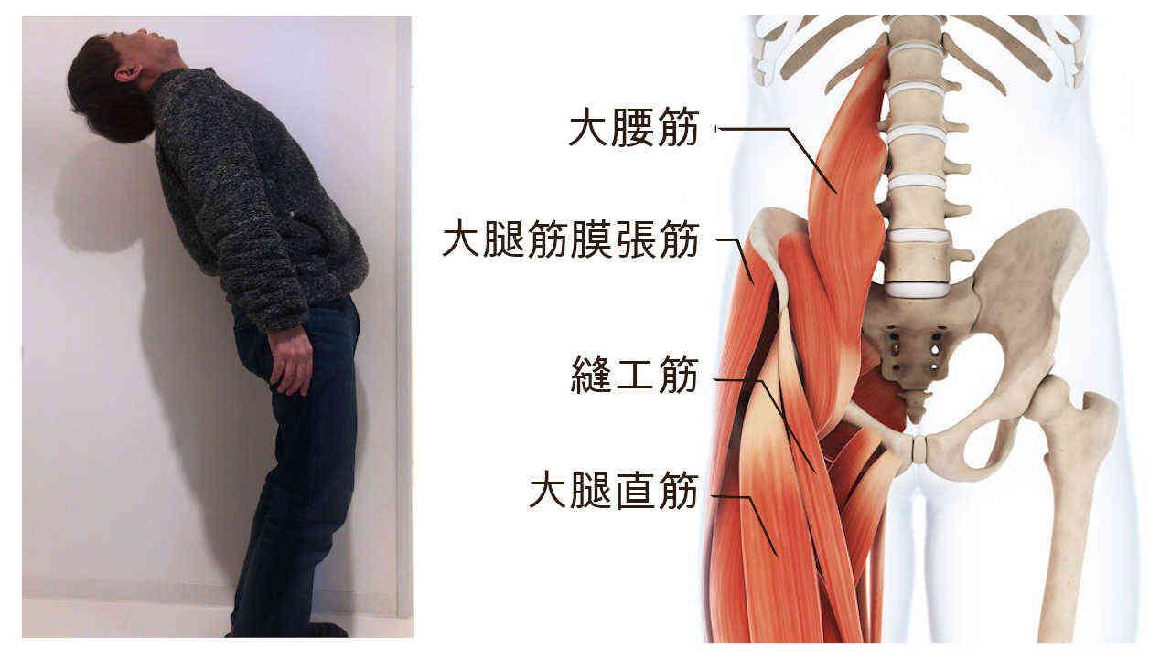 後ろに反ると痛い腰痛の原因