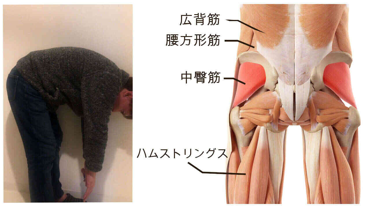 前に曲げると痛い腰痛の原因