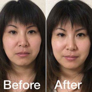 施術前後の顔の印象の変化